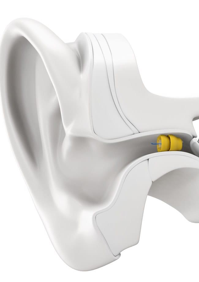 phonak hearing aid diagram visual
